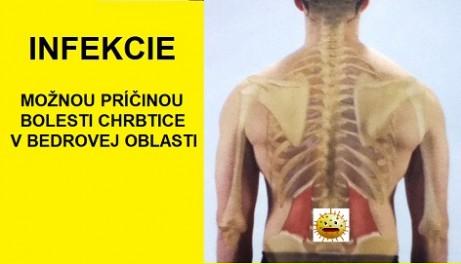 infekcie-sposobuju-bolest-chrbtice