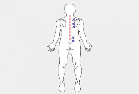 ako-zmiernit-bolest-chrbtice-vdaka-masazi-loptickou