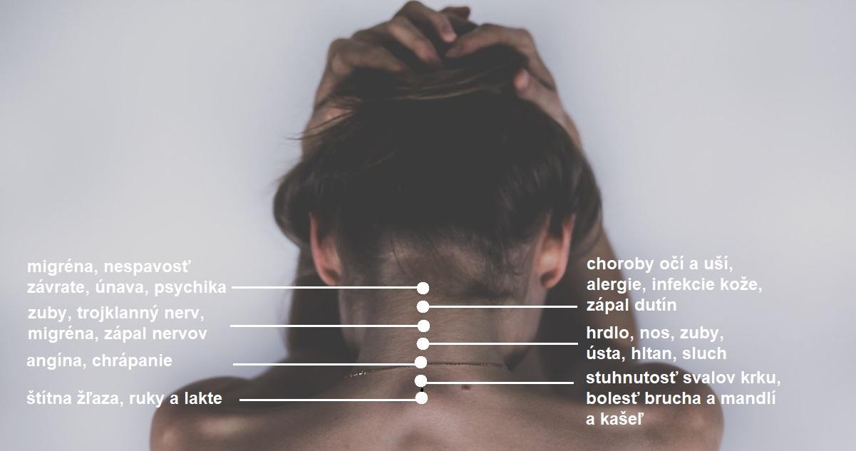 deformacie-krcnej-chrbtice