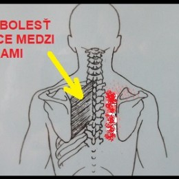 bolest-chrbtice-medzi-lopatkami